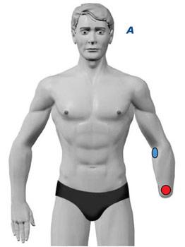 TENS Elektrodenanlage bei Amputationsschmerzen am Arm