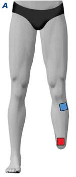 TENS Elektrodenanlage bei Amputationsschmerzen am Bein