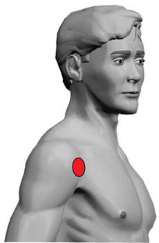 TENS Elektrodenanlage bei Schultergelenkschmerzen Schulterschmerzen