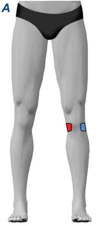 Elektrodenanlage Knieschmerzen 1-Kanal