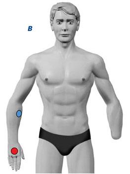 TENS Elektrodenanlage bei Phantomschmerzen am Arm