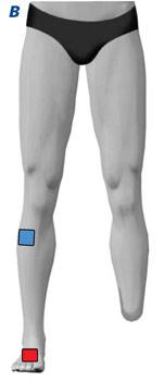 TENS Elektrodenanlage bei Phantomschmerzen am Bein