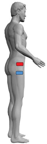 TENS Elektrodenanlage bei Hüftschmerzen Beinschmerzen